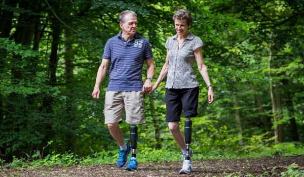 NHS funding for advanced prosthetics could lead to lower patient injury rates
